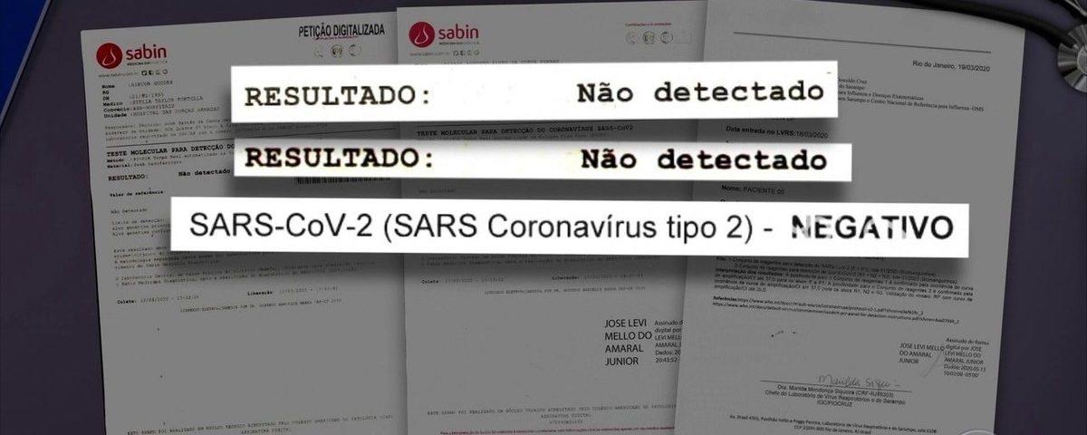 Testes do presidente Bolsonaro mostram resultados negativos para o novo coronavírus