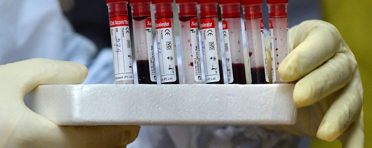 A OMS recomenda procurar casos suspeitos de coronavírus a partir do final de 2019